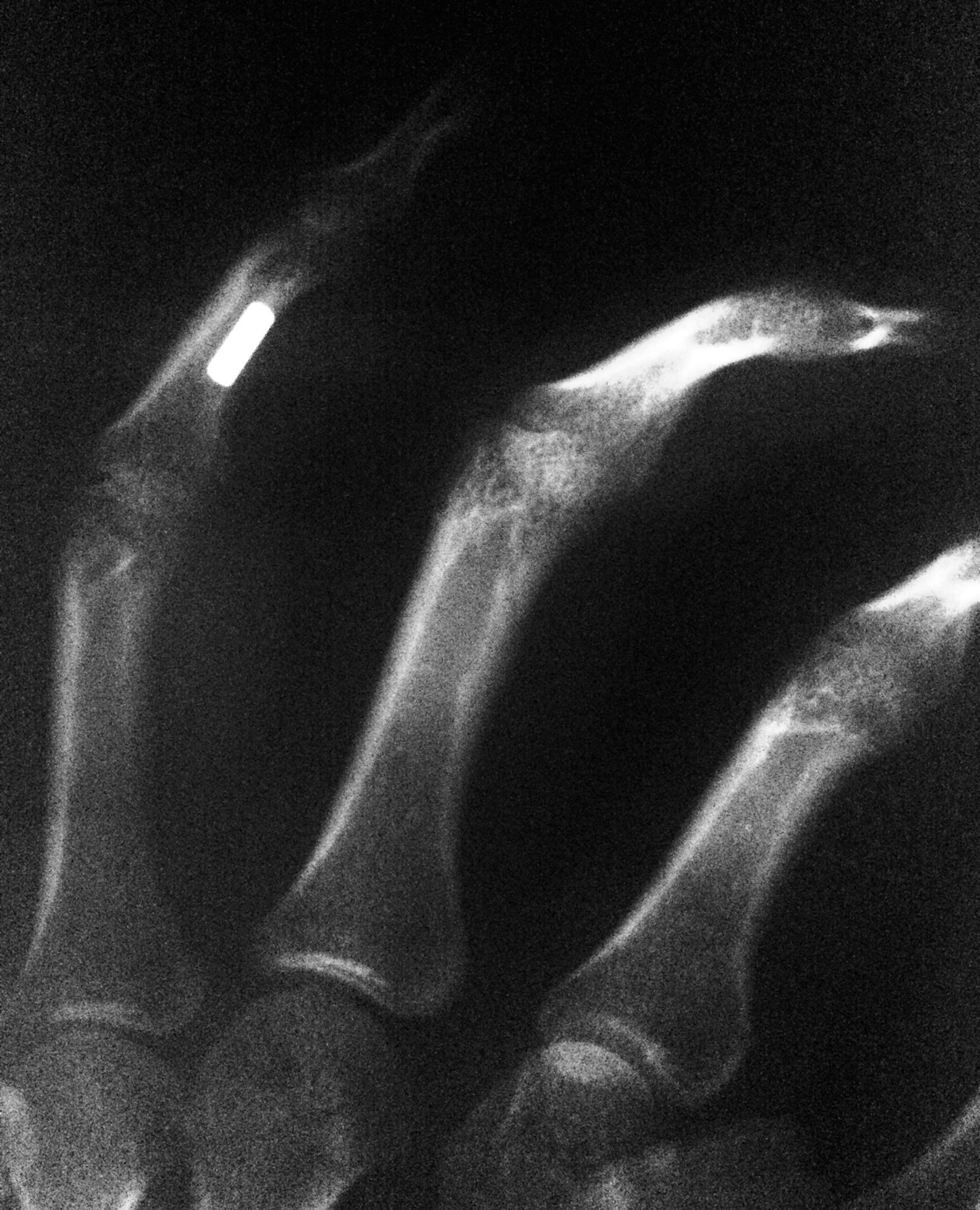 X-Ray of the magnet in my finger